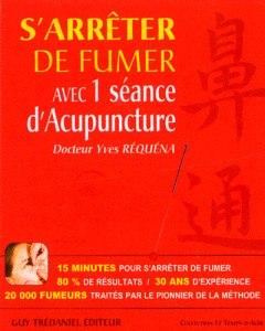 S-arreter-de-fumer-en-une-seance-d-acupuncture